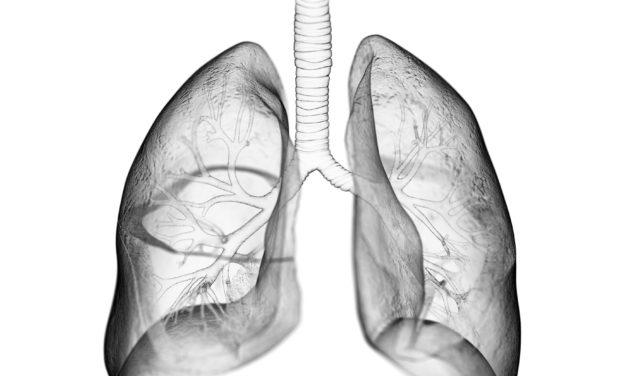 Sobreviventes do Coronavírus Podem Sofrer Funções Pulmonares Reduzidas
